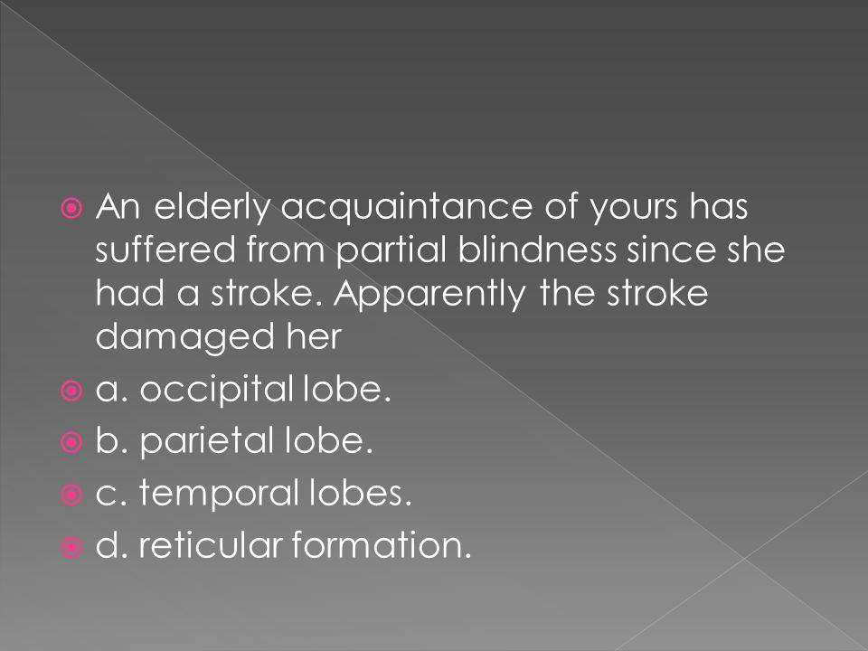  a. occipital lobe.