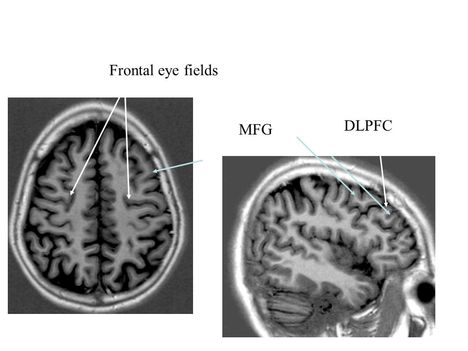 MFG Frontal eye fields DLPFC