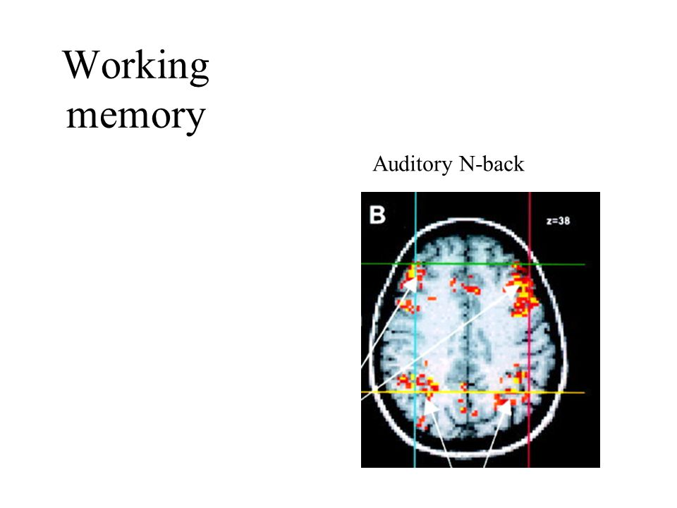 Working memory Auditory N-back