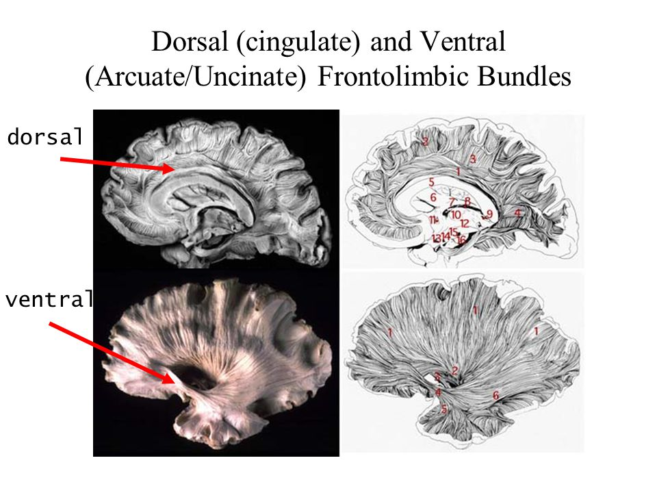 Dorsal (cingulate) and Ventral (Arcuate/Uncinate) Frontolimbic Bundles dorsal ventral