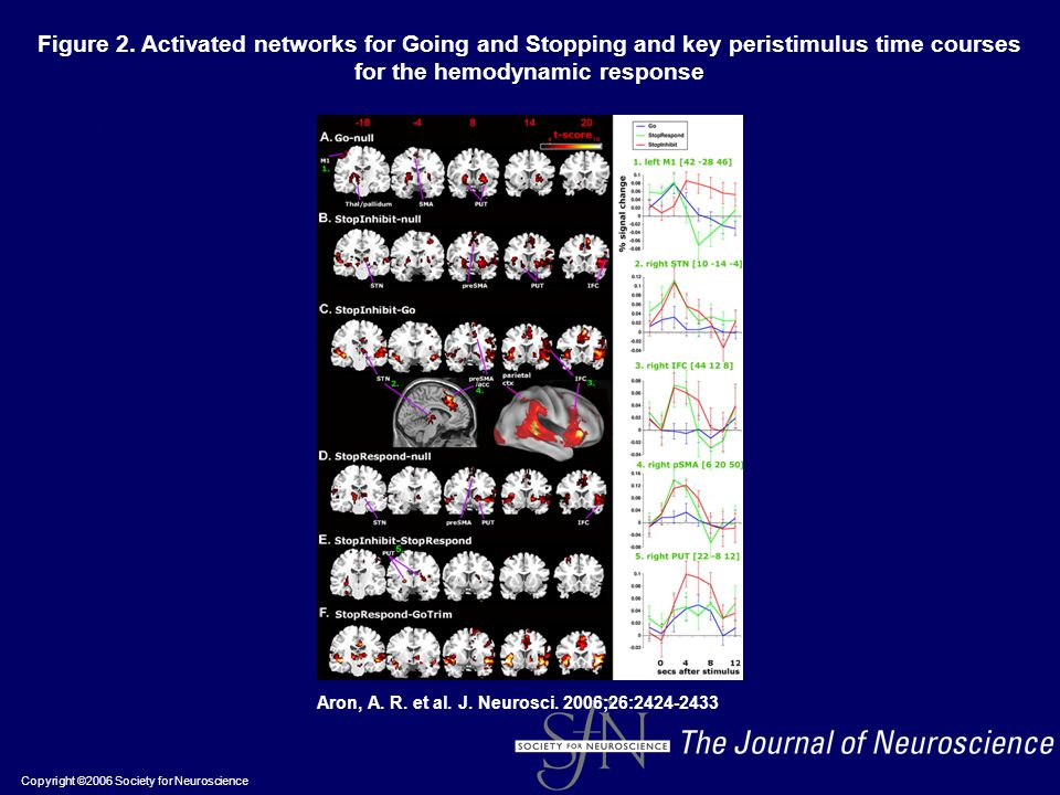 Copyright ©2006 Society for Neuroscience Aron, A. R. et al. J. Neurosci. 2006;26:2424-2433 Figure 2. Activated networks for Going and Stopping and key