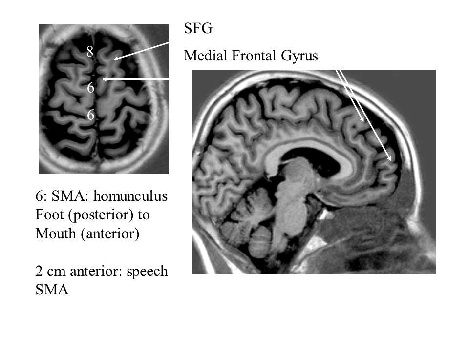 Medial Frontal Gyrus 6 8 SFG 6: SMA: homunculus Foot (posterior) to Mouth (anterior) 2 cm anterior: speech SMA 6
