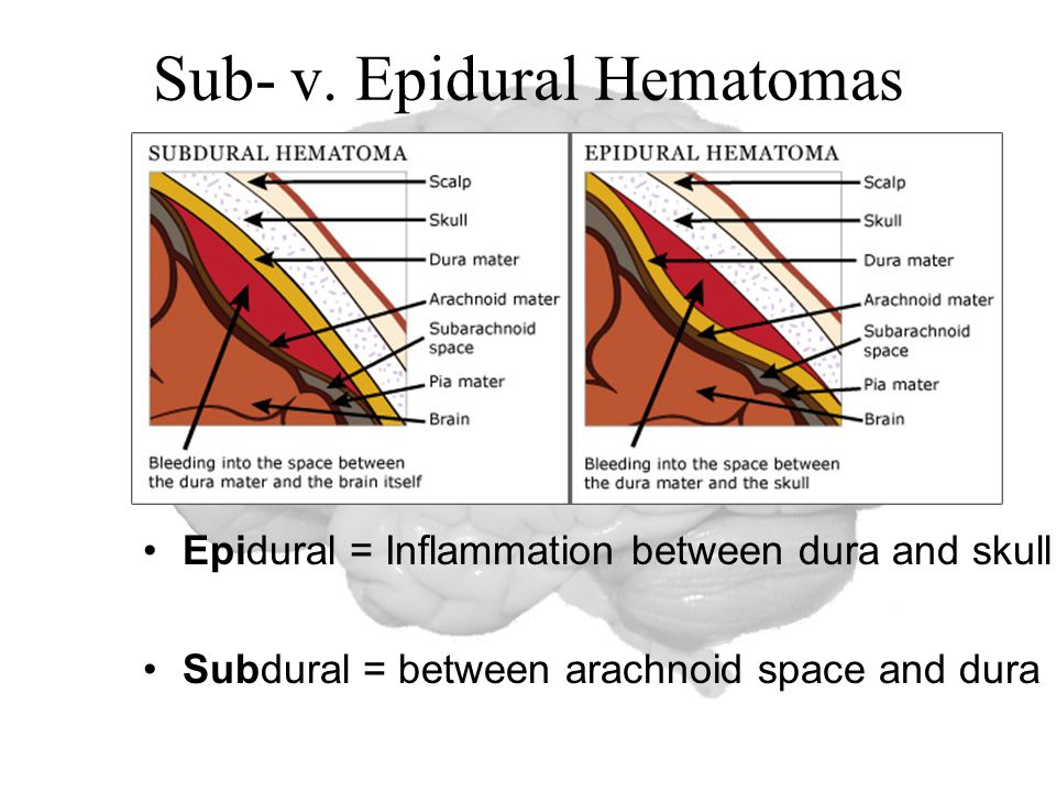 Sub- v. Epidural Hematomas Epidural = Inflammation between dura and skull Subdural = between arachnoid space and dura