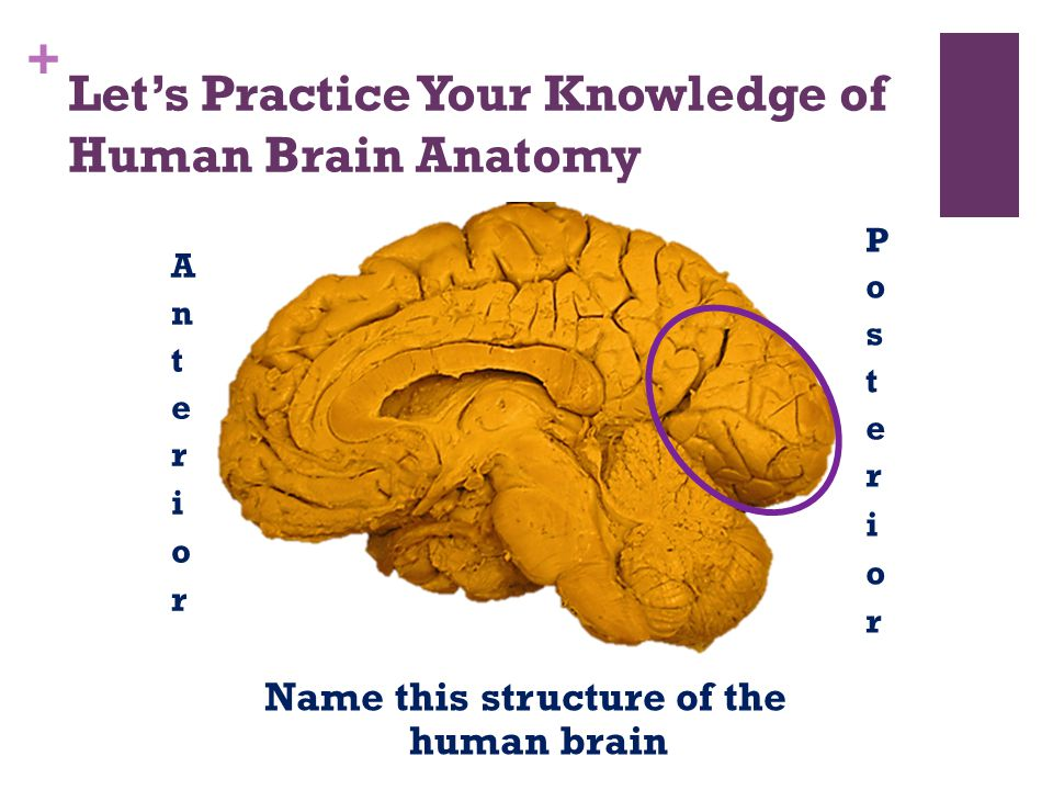 + Let's Practice Your Knowledge of Human Brain Anatomy Name this structure of the human brain