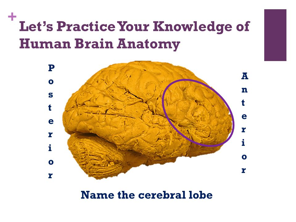 + Let's Practice Your Knowledge of Human Brain Anatomy Name the cerebral lobe