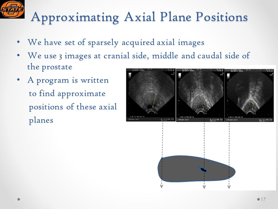 Approximating Axial Plane Positions We have set of sparsely acquired axial images We use 3 images at cranial side, middle and caudal side of the prostate A program is written to find approximate positions of these axial planes 17