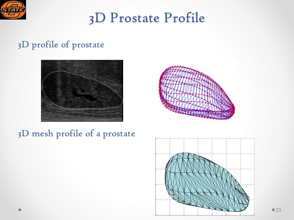 3D Prostate Profile 3D profile of prostate 3D mesh profile of a prostate 23