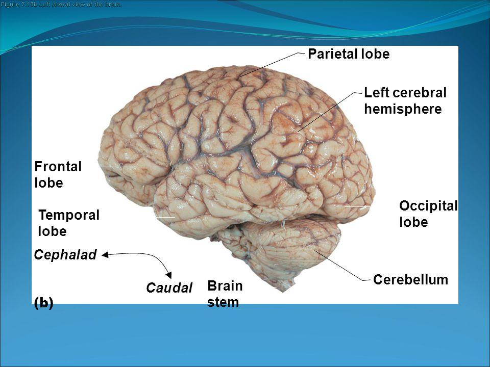 Diencephalon Sits on top of the brain stem Cerebral hemispheres wrap around it Three parts: 1.