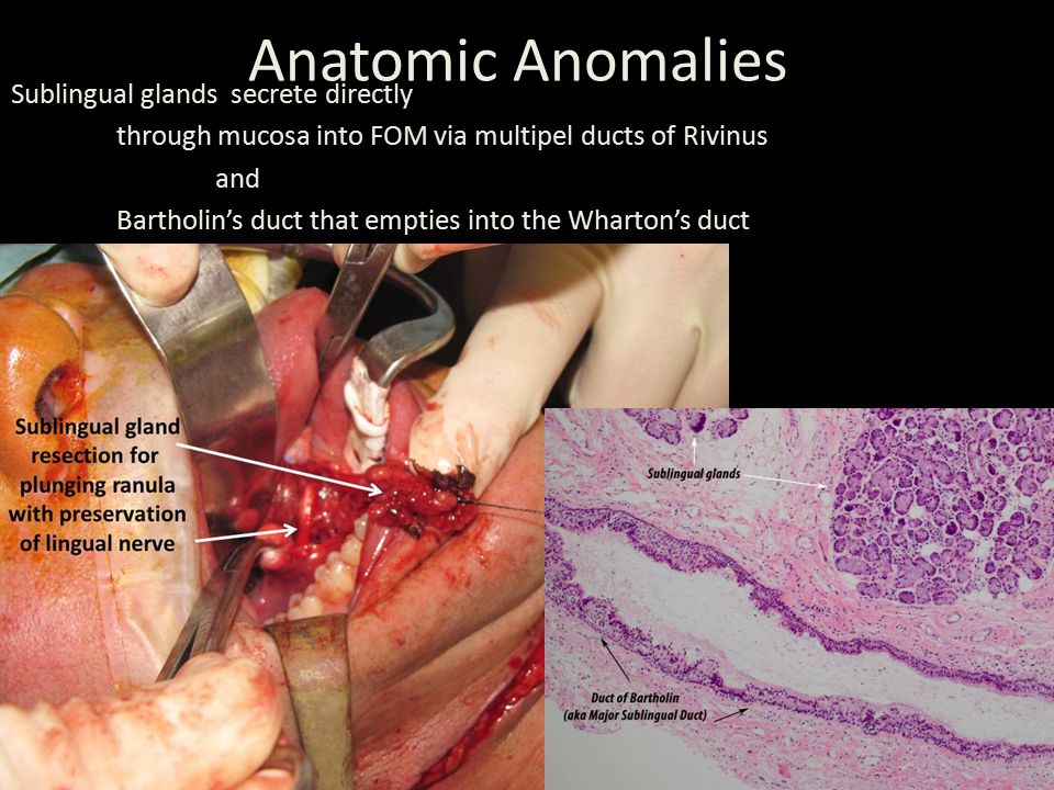 Anatomic Anomalies Sublingual glands secrete directly through mucosa into FOM via multipel ducts of Rivinus and Bartholin's duct that empties into the Wharton's duct