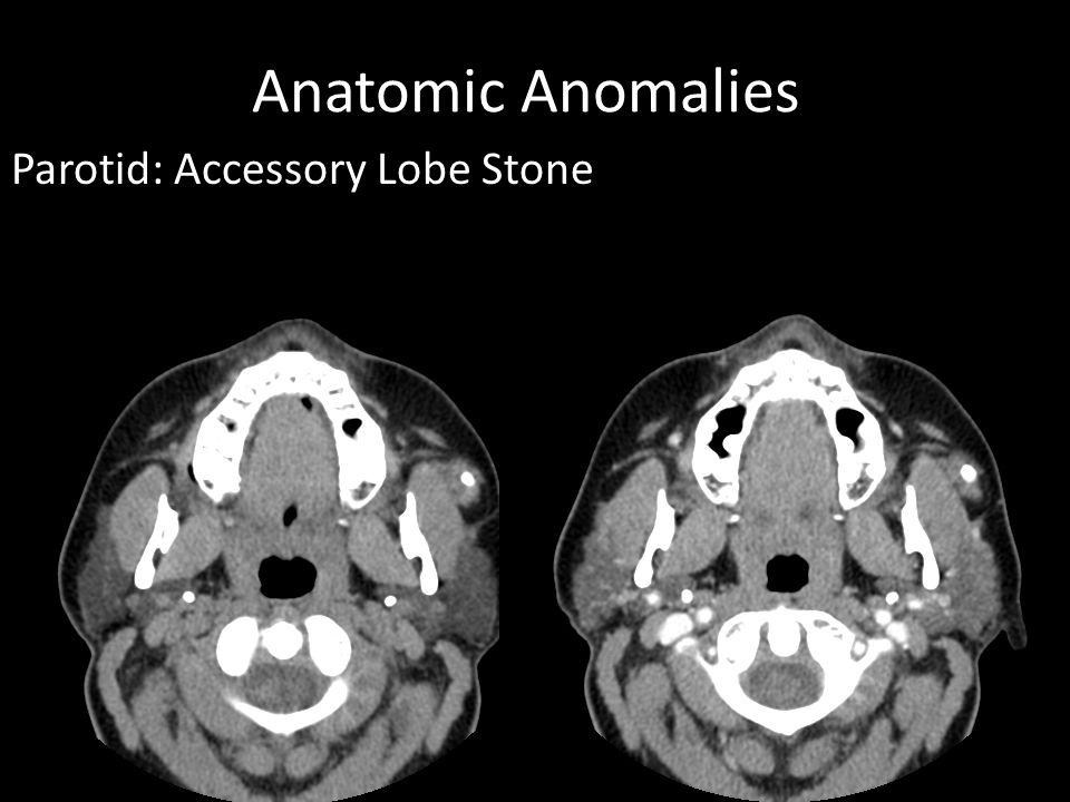 Anatomic Anomalies Parotid: Accessory Lobe Stone