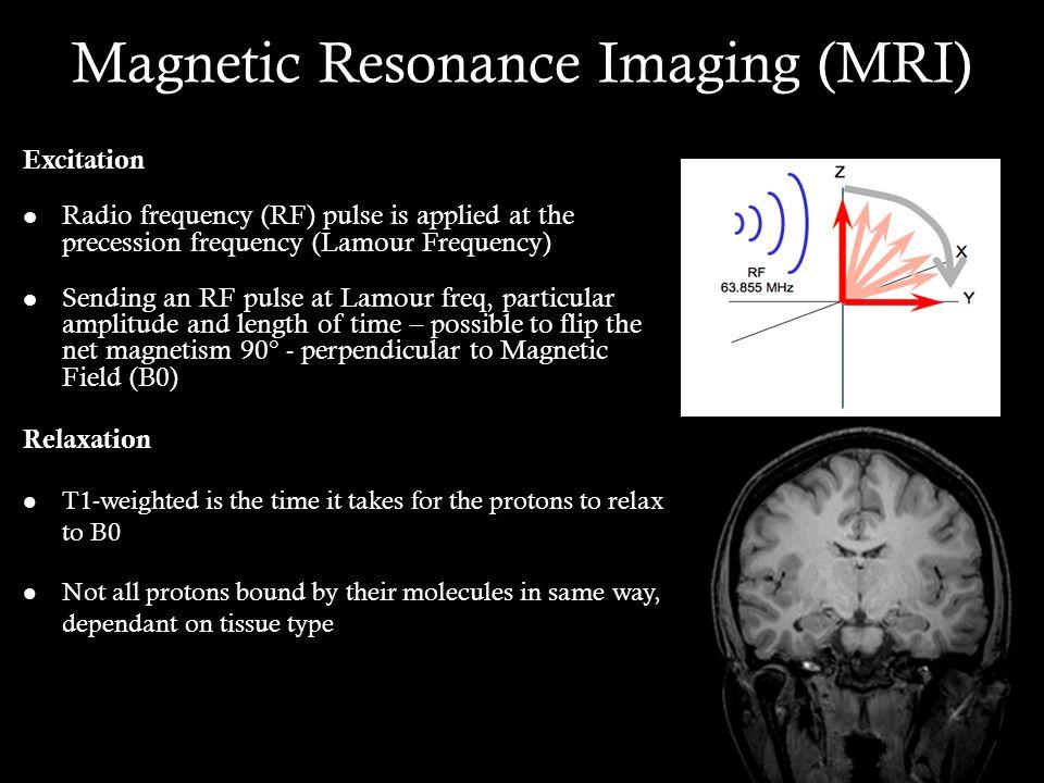 Voxel-based Mophometry MNI Brain Original SegmentationNormalisationModulationSmoothing