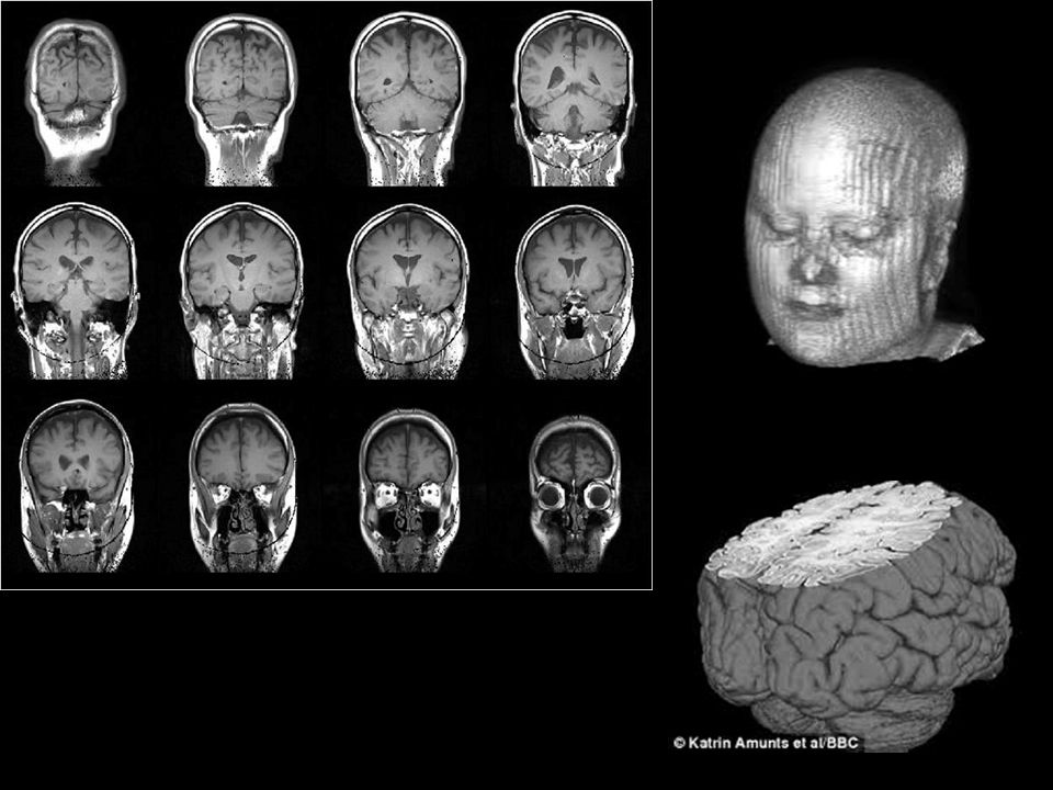 VBM - Limitations Accuracy of the spatial normalisation Regular SPM uses 1000 parameters – just fits overall shape of the brain -mis-registrations Deformation-based morphometry (e.g.