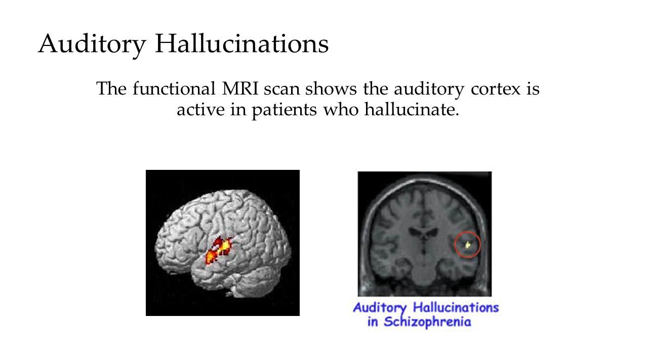 Auditory Hallucinations The functional MRI scan shows the auditory cortex is active in patients who hallucinate.