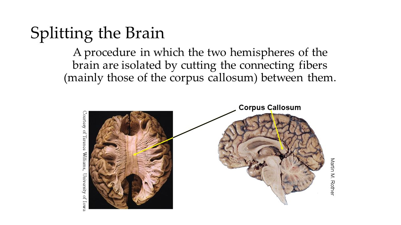 Splitting the Brain A procedure in which the two hemispheres of the brain are isolated by cutting the connecting fibers (mainly those of the corpus ca