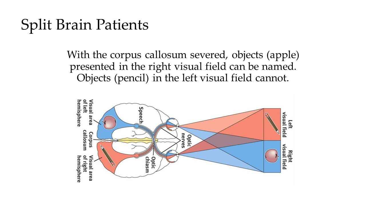 Split Brain Patients With the corpus callosum severed, objects (apple) presented in the right visual field can be named. Objects (pencil) in the left