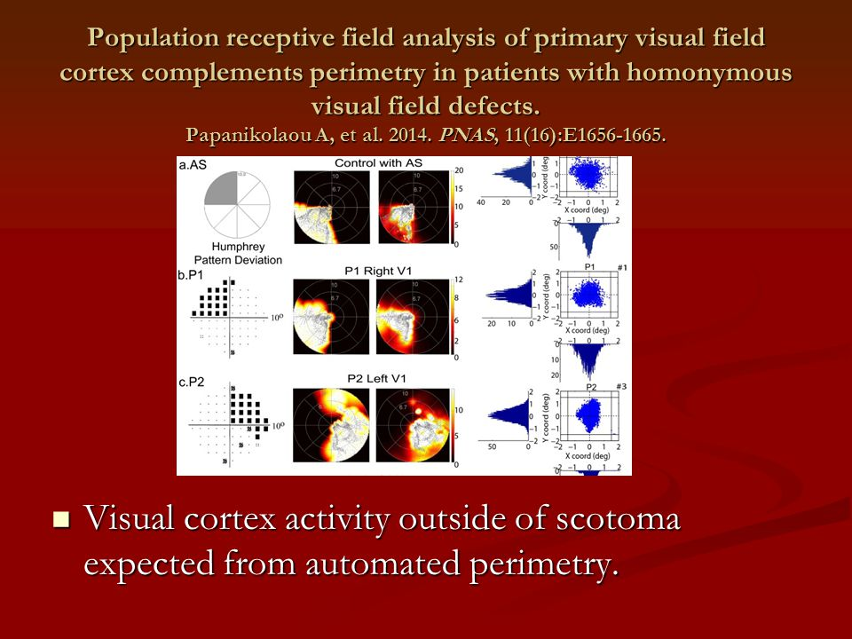 Visual cortex activity outside of scotoma expected from automated perimetry. Population receptive field analysis of primary visual field cortex comple
