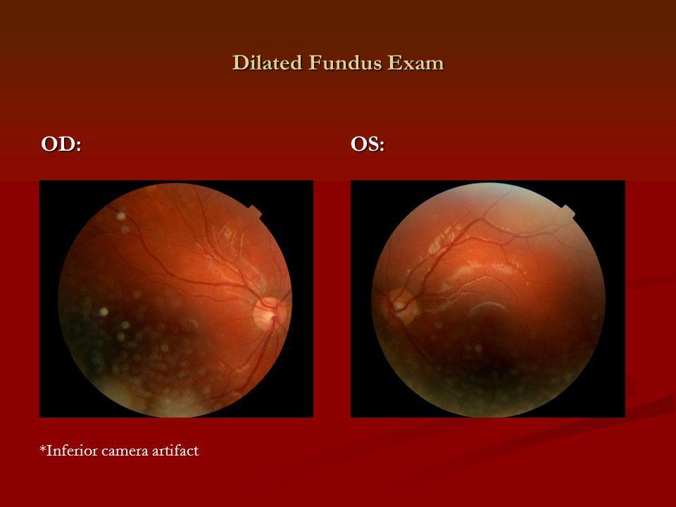 Visual Fields (24-2) OD: OS: Left superior homonymous quandrantanopia