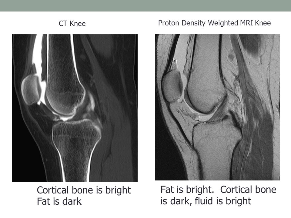 CT Knee Cortical bone is bright Fat is dark Proton Density-Weighted MRI Knee Fat is bright.