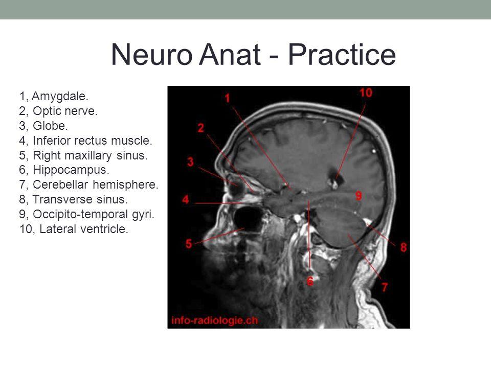 1, Amygdale. 2, Optic nerve. 3, Globe. 4, Inferior rectus muscle.