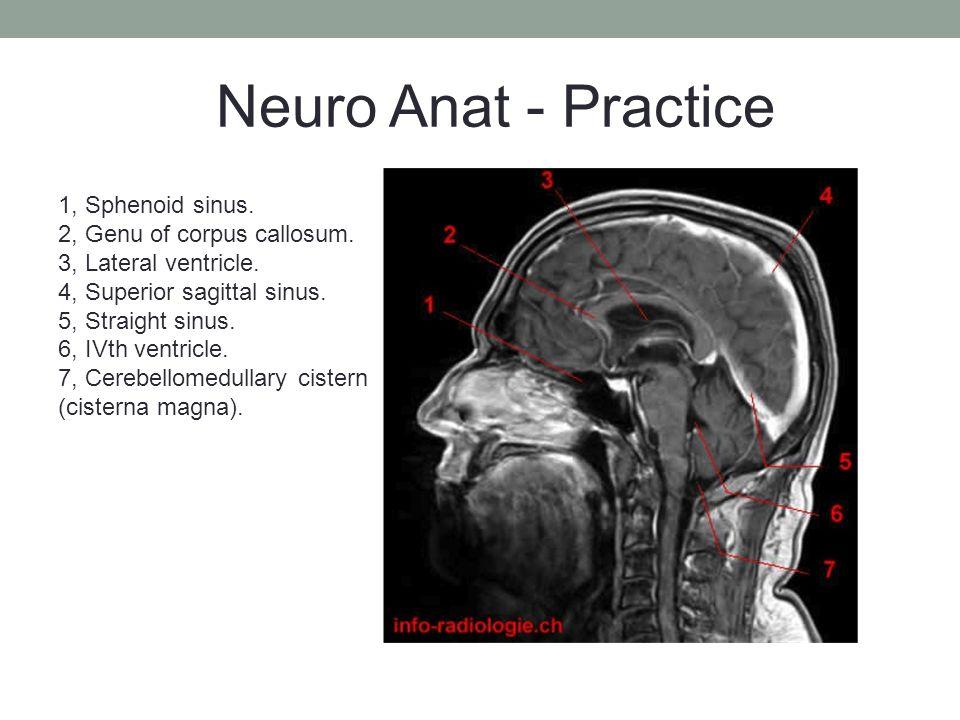 1, Sphenoid sinus. 2, Genu of corpus callosum. 3, Lateral ventricle.