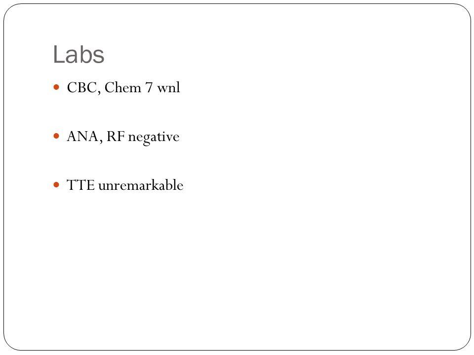 Labs CBC, Chem 7 wnl ANA, RF negative TTE unremarkable