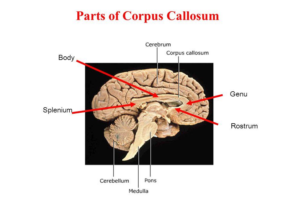 Parts of Corpus Callosum Rostrum Genu Body Splenium