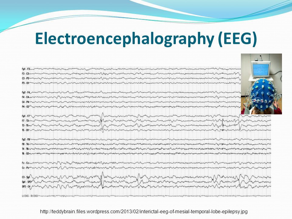 Electroencephalography (EEG) http://teddybrain.files.wordpress.com/2013/02/interictal-eeg-of-mesial-temporal-lobe-epilepsy.jpg