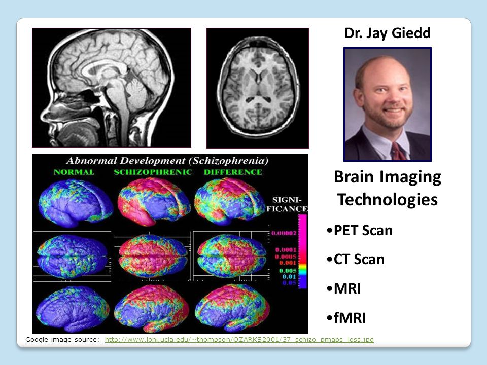Dr. Jay Giedd Brain Imaging Technologies PET Scan CT Scan MRI fMRI Google image source: http://www.loni.ucla.edu/~thompson/OZARKS2001/37_schizo_pmaps_