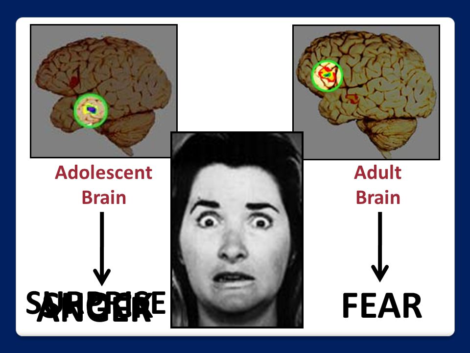 Adolescent Brain Adult Brain FEAR ANGER SHOCK SURPRISE