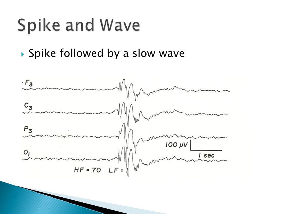 Spike followed by a slow wave