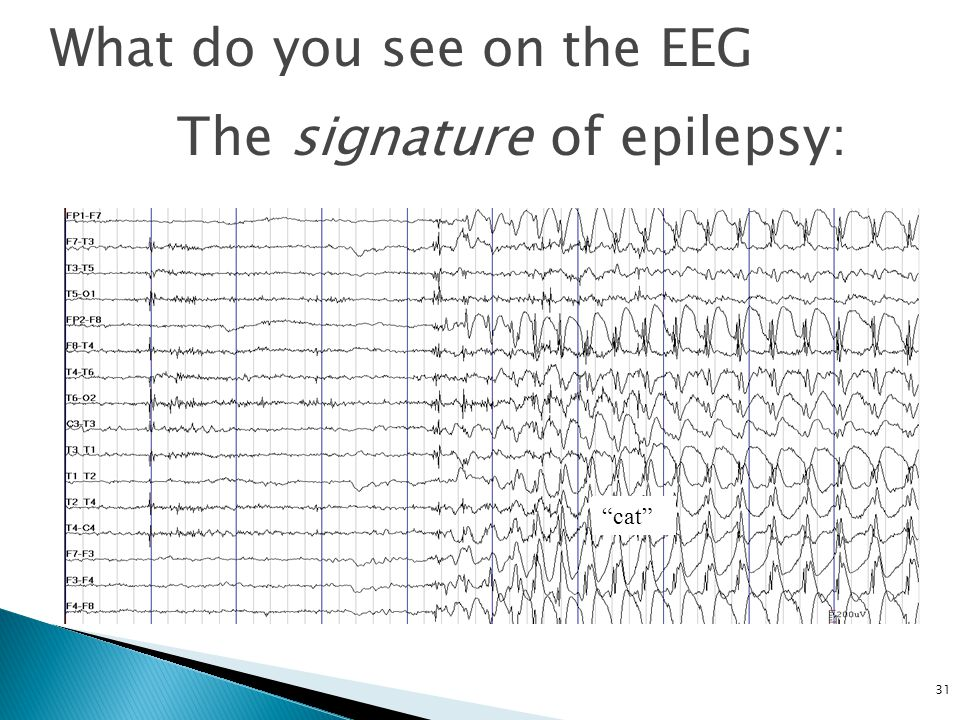 31 What do you see on the EEG The signature of epilepsy: cat