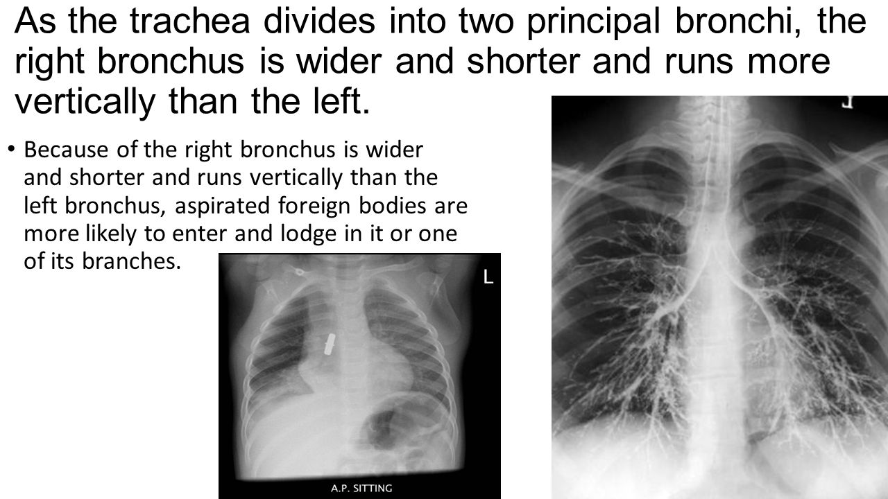 As the trachea divides into two principal bronchi, the right bronchus is wider and shorter and runs more vertically than the left. Because of the righ