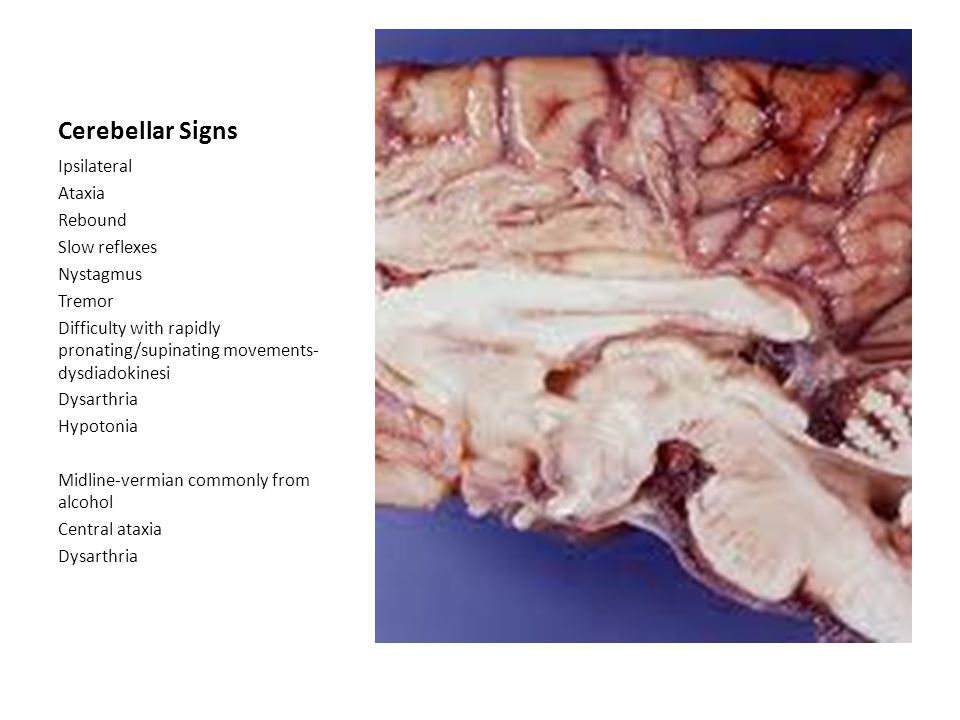 Cerebellar Signs Ipsilateral Ataxia Rebound Slow reflexes Nystagmus Tremor Difficulty with rapidly pronating/supinating movements- dysdiadokinesi Dysarthria Hypotonia Midline-vermian commonly from alcohol Central ataxia Dysarthria