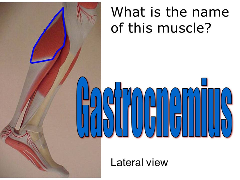 What is the name of this muscle Lateral view