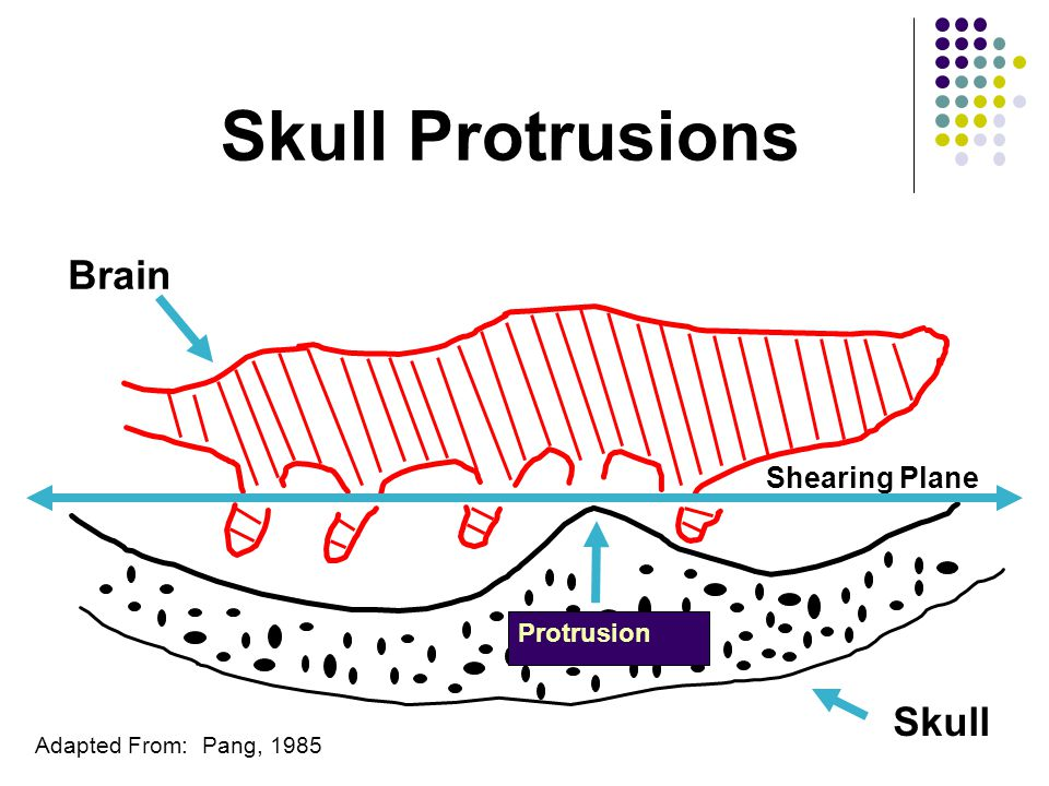 Skull Protrusions Adapted From: Pang, 1985 Skull Shearing Plane Brain Protrusion