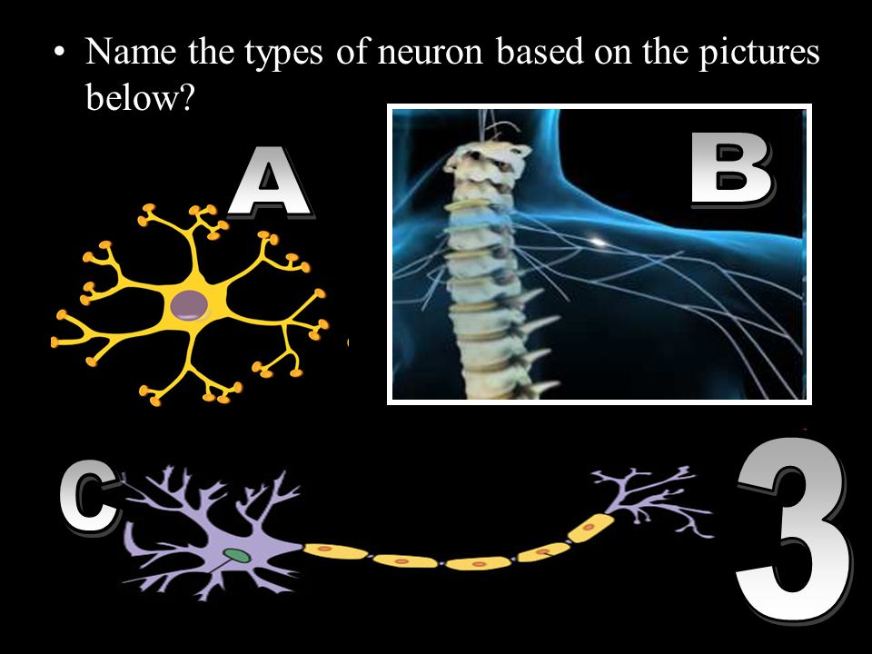 Name the types of neuron based on the pictures below? Copyright © 2010 Ryan P. Murphy