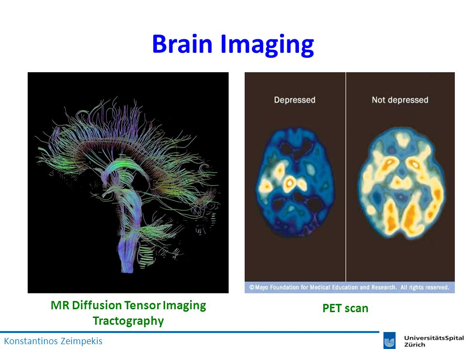 Brain Imaging MR Diffusion Tensor Imaging Tractography PET scan Konstantinos Zeimpekis