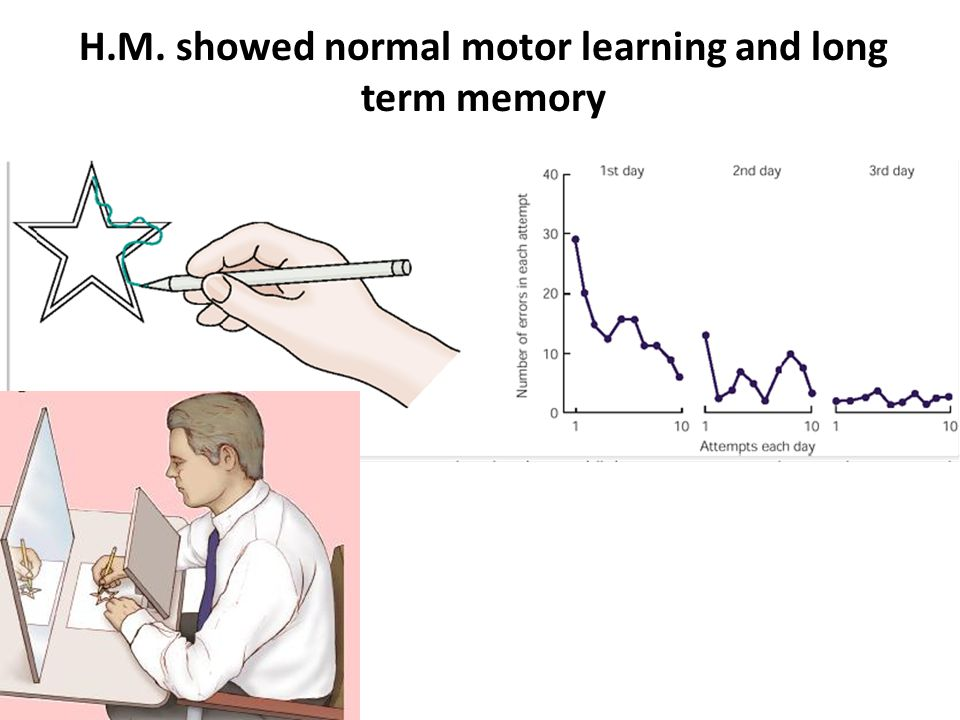 H.M. showed normal motor learning and long term memory