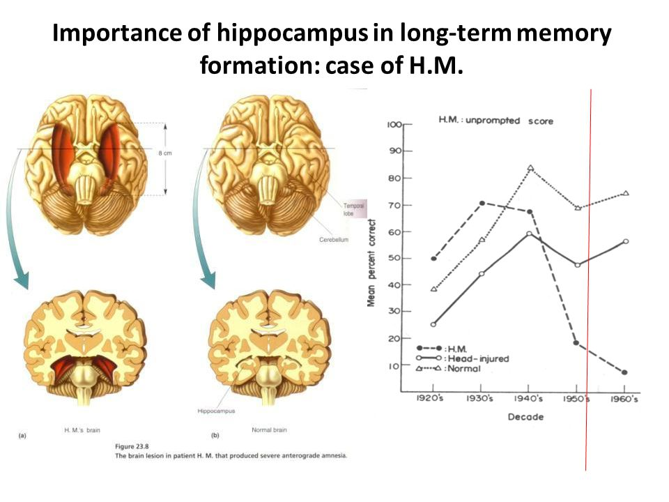 Importance of hippocampus in long-term memory formation: case of H.M.