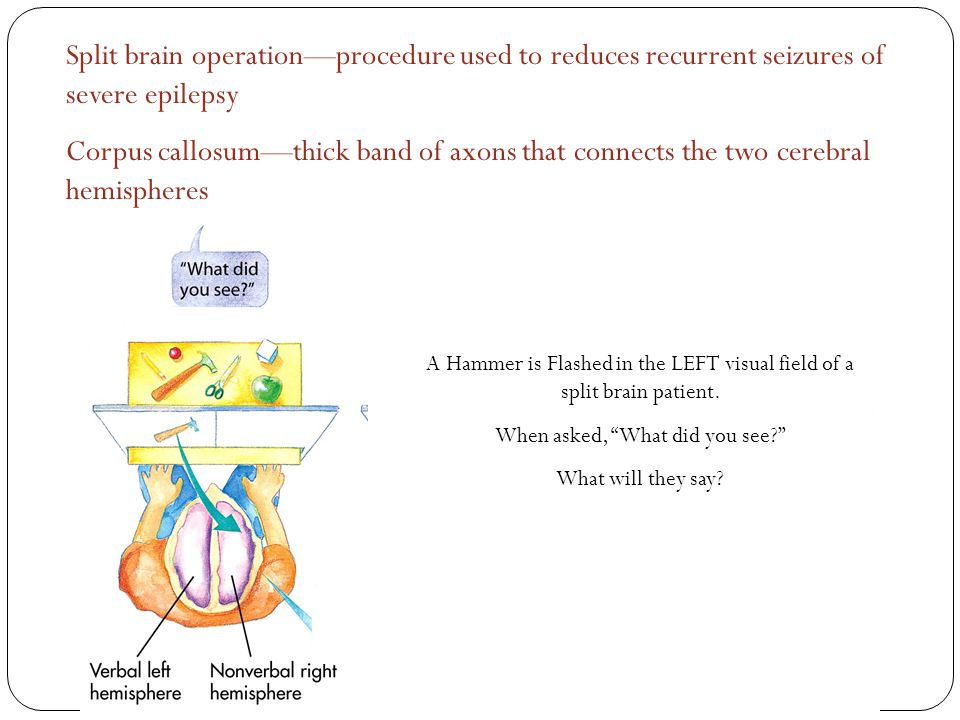 Split brain operation—procedure used to reduces recurrent seizures of severe epilepsy Corpus callosum—thick band of axons that connects the two cerebral hemispheres A Hammer is Flashed in the LEFT visual field of a split brain patient.