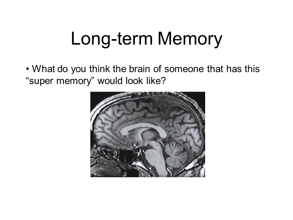 "What do you think the brain of someone that has this ""super memory"" would look like? Long-term Memory"