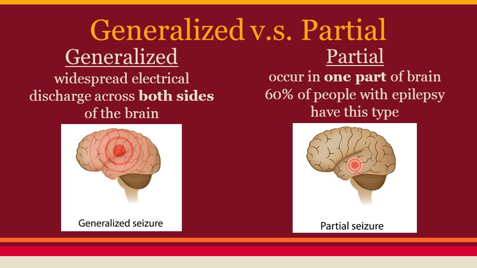 Generalized v.s. Partial Generalized widespread electrical discharge across both sides of the brain Partial occur in one part of brain 60% of people w