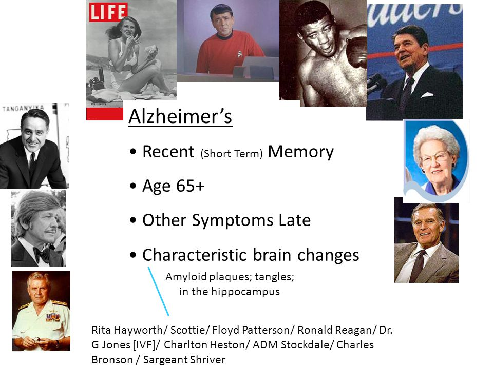 Different Dementias Alzheimer's Vascular Lewy body Frontotemporal lobe Traumatic Brain Injury Parkinson's Disease Alcohol CADASIL HIV