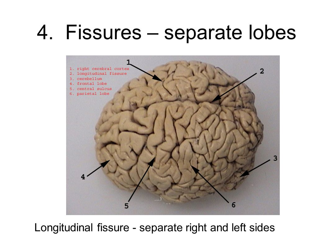 4. Fissures – separate lobes Longitudinal fissure - separate right and left sides