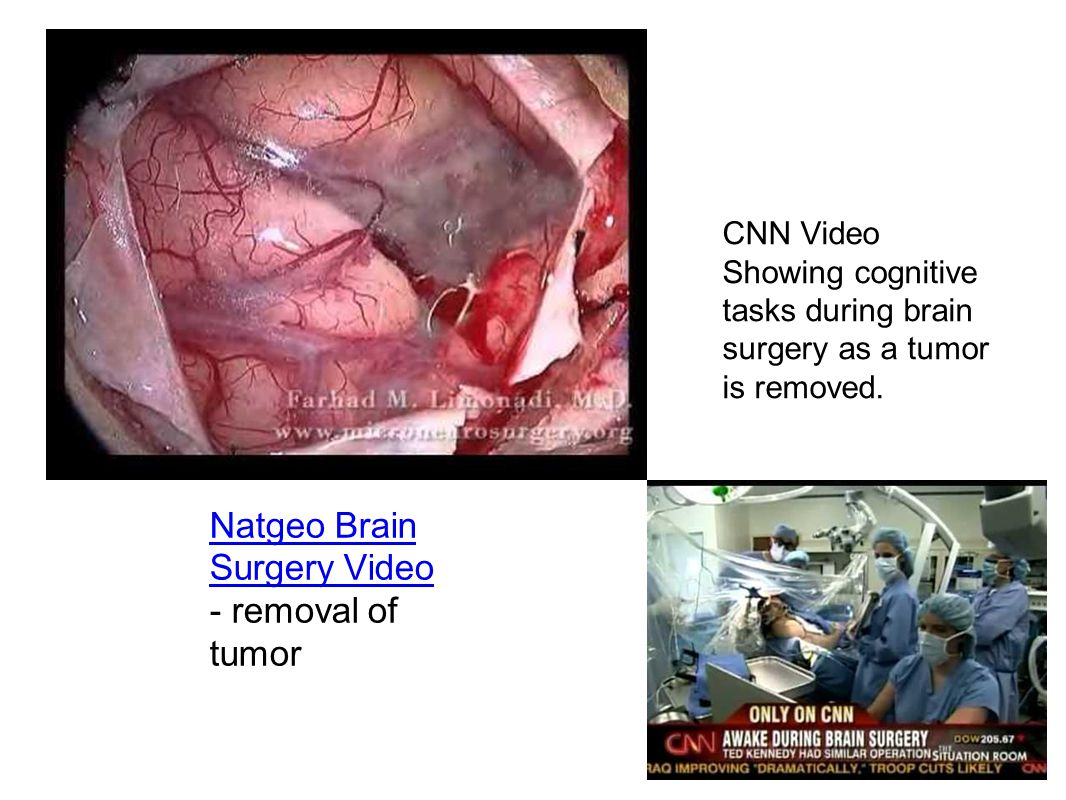 Natgeo Brain Surgery Video Natgeo Brain Surgery Video - removal of tumor CNN Video Showing cognitive tasks during brain surgery as a tumor is removed.