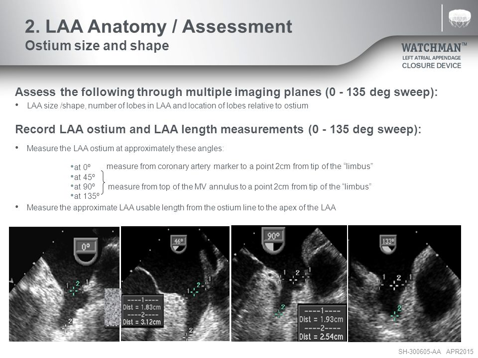 SH-300605-AA APR2015 Assess the following through multiple imaging planes (0 - 135 deg sweep): LAA size /shape, number of lobes in LAA and location of