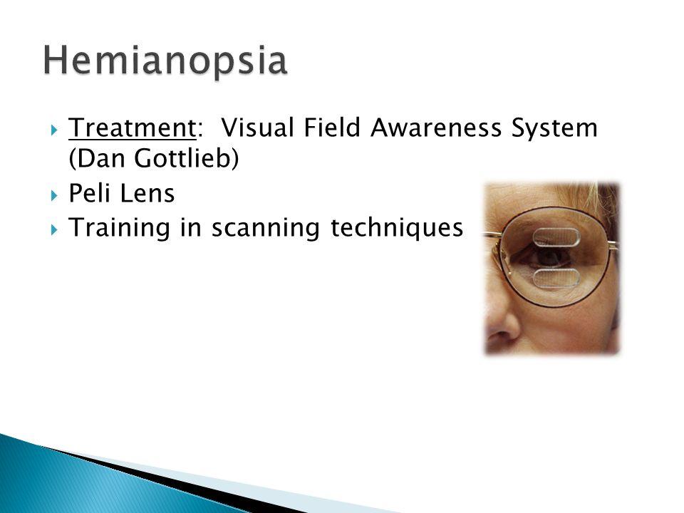  Treatment: Visual Field Awareness System (Dan Gottlieb)  Peli Lens  Training in scanning techniques
