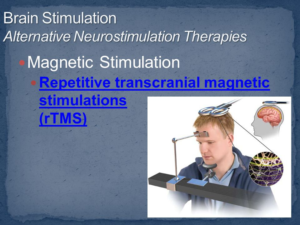Magnetic Stimulation Repetitive transcranial magnetic stimulations (rTMS) Repetitive transcranial magnetic stimulations (rTMS)