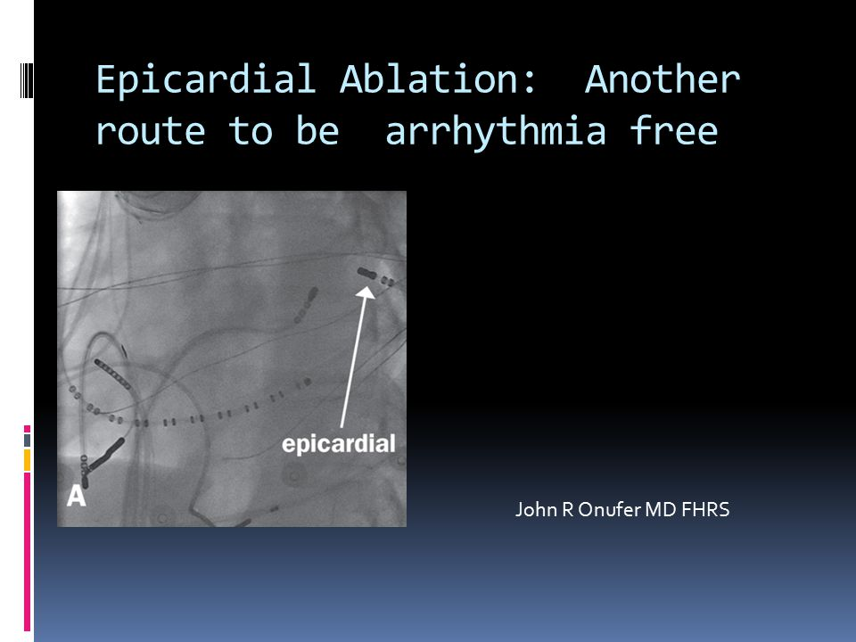 Epicardial Ablation: Another route to be arrhythmia free John R Onufer MD FHRS