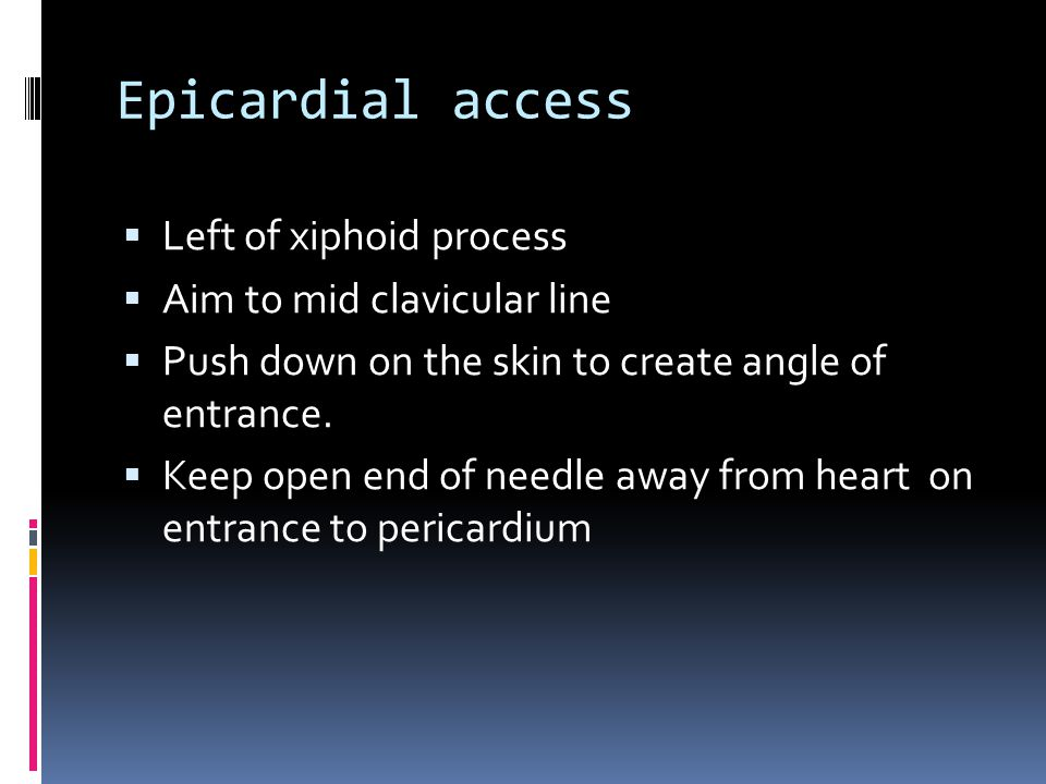 Epicardial access  Left of xiphoid process  Aim to mid clavicular line  Push down on the skin to create angle of entrance.